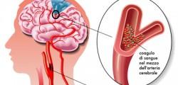 giornata di prevenzione contro l'ictus