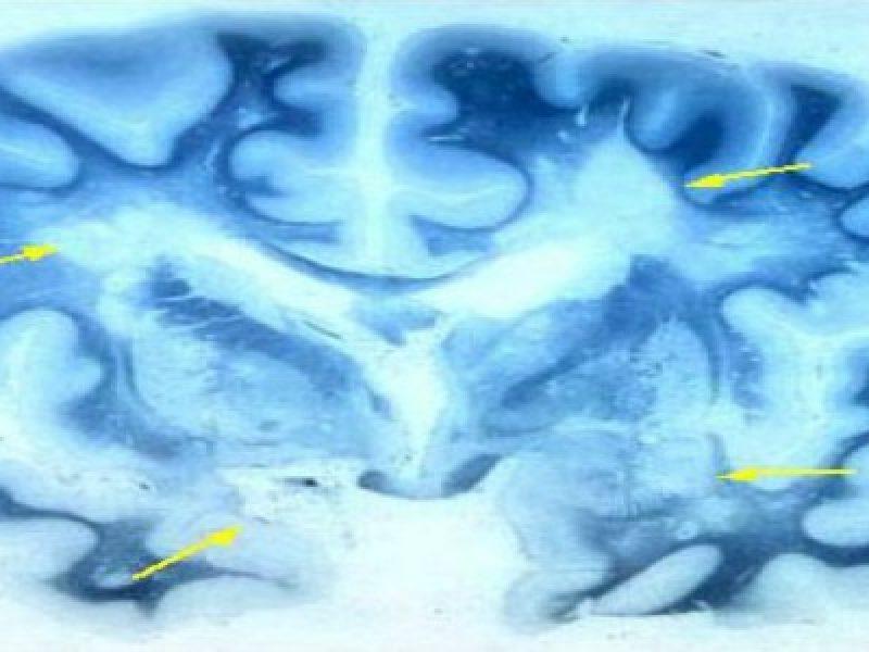 sintomi sclerosi multipla