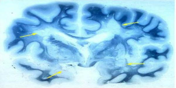 Ecco perché le 'cellule sentinella' causano la sclerosi multipla   La scoperta potrebbe portare a terapie migliori