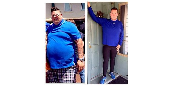 Graham Elliot ha perso 60 chili: le FOTO del prima e dopo