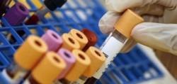 esame-del-sangue-contro tumore ovaie