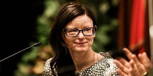 Lucia Annibali, oggi la seconda udienza  | La donna coraggio sfregiata con l'acido dall'ex