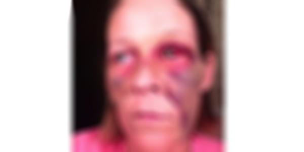 Usa, massacra a calci e pugni l'ex fidanzata | Lei pubblica su Facebook le foto