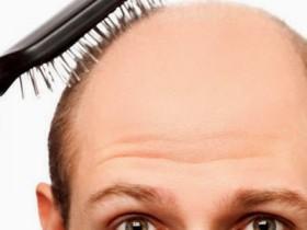Perdita di capelli, calvizie