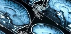 alzheimer, cura per l'alzheimer, arginina, sintomi alzheimer, duke university, scoperta cura per l'alzheimer,