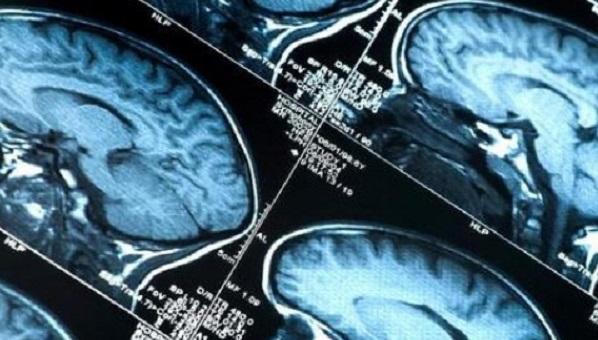 Alzheimer, scoperta la causa della malattia | Dalla cura sui topi all'uomo il passo è breve