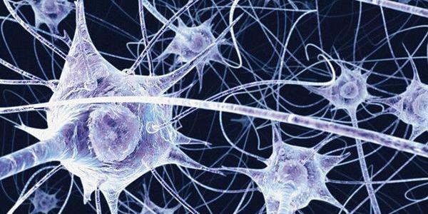 Alzheimer precoce: ecco la diagnosi veloce   La scoperta in uno studio del San Raffaele