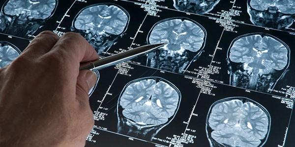 farmaco-contro-ansia-per-combrattere-demenza-senile-consente-di-ringiovanire-il-cervello