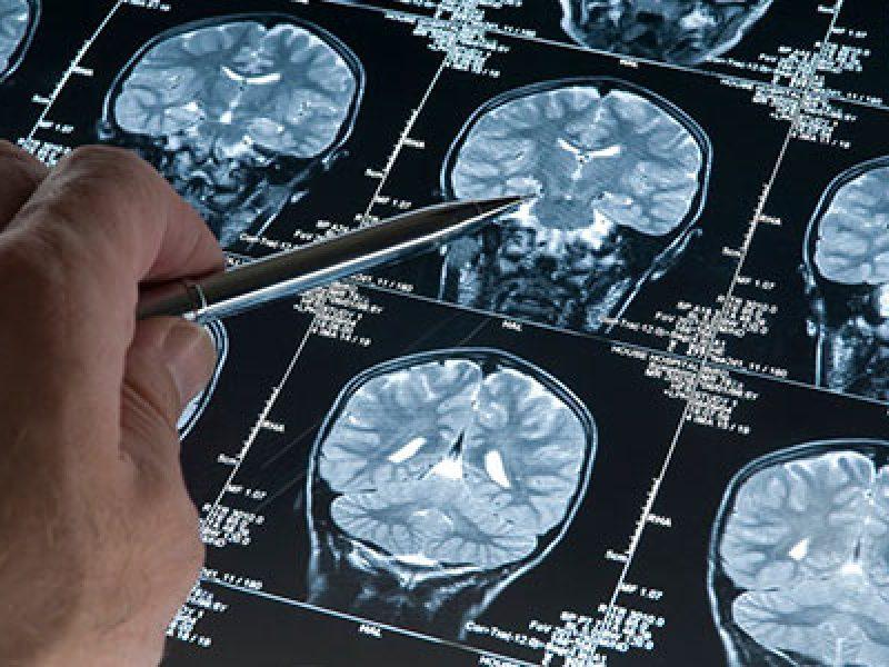 scoperto il farmaco per curare malattia neurodegenerativa