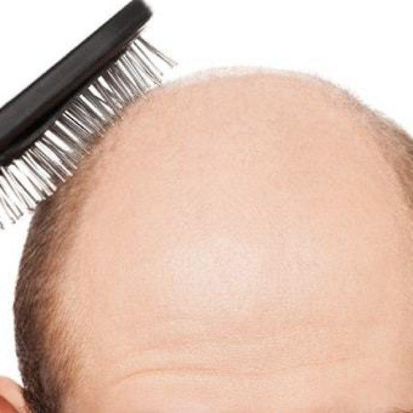 Calvizie, gli uomini bassi sono più a rischio | La perdita di capelli è correlata a diverse patologie