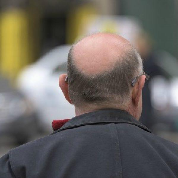 Calvizie e capelli grigi, tutta colpa di una proteina: la ricerca della Texas University