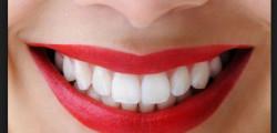 gli-italiani-spendono-30-milioni-di-euro-per-sbiancare-i-denti