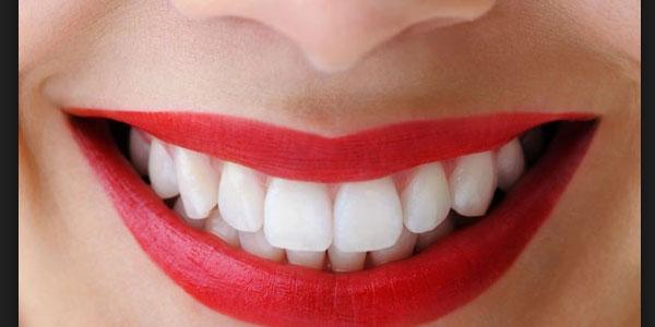 Gli italiani spendono 30 milioni di euro l'anno per sbiancare i denti