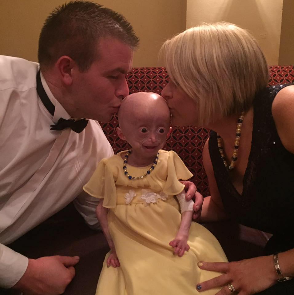 Addio a Lucy Parke: morta la bambina con il corpo da anziana