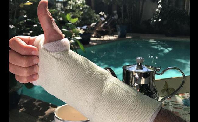 Infortunio al braccio per Mika, il cantante ci ride su