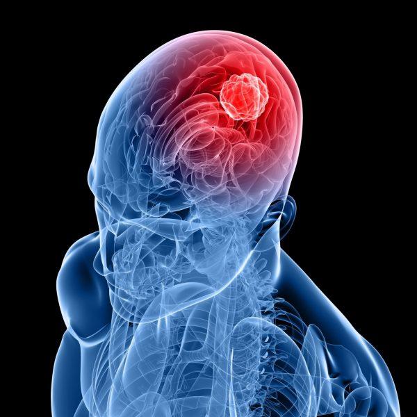 Telefonini e tumori, nuove prove sulla tossicità