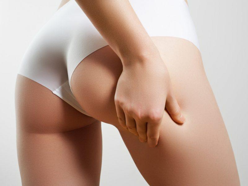 5 abitudine per eliminare la cellulite