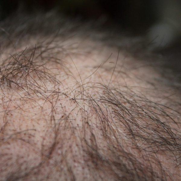 Combattere la caduta dei capelli? Sì, con un farmaco contro l'osteoporosi