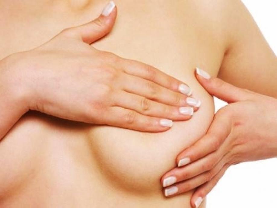 Una terapia contro il cancro al seno riaccende la speranza delle donne