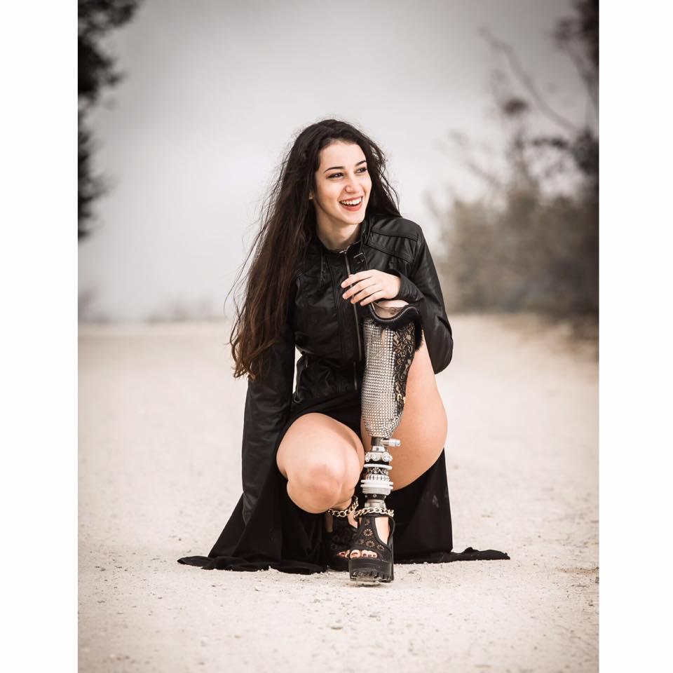 A Miss Italia anche una ragazza con la protesi a una gamba