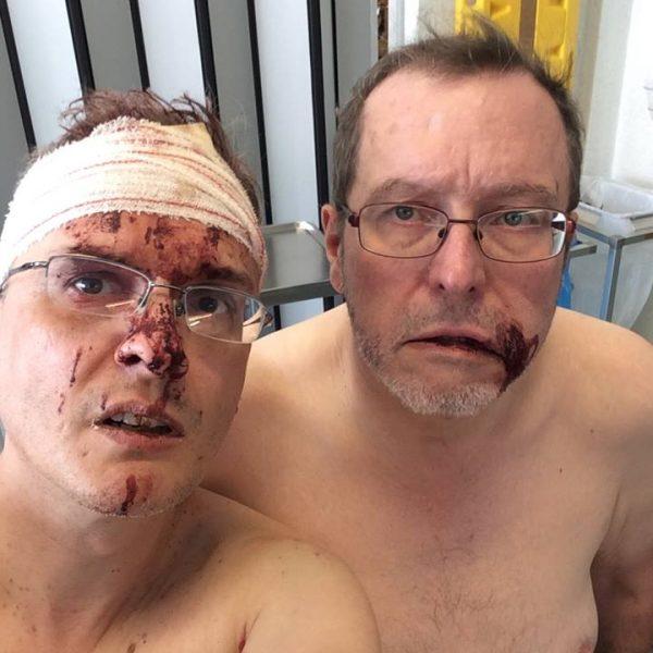 Belgio, coppia gay aggredita brutalmente
