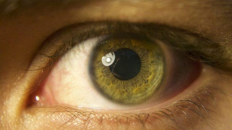 La spia del Parkinson nella retina che si assottiglia