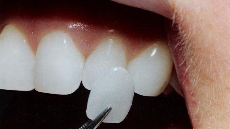 Bellezza: un sorriso perfetto con le faccette dentali