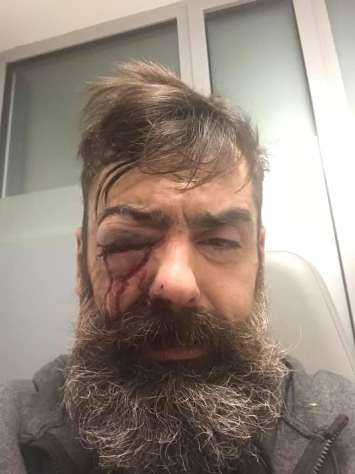 Gilet gialli, scontri alla Bastiglia: ferito uno dei leader
