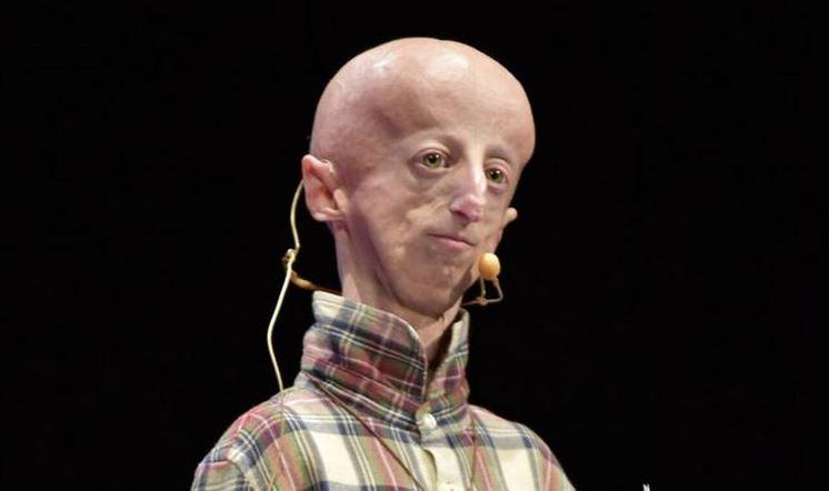 Progeria, riuscito il primo intervento al cuore