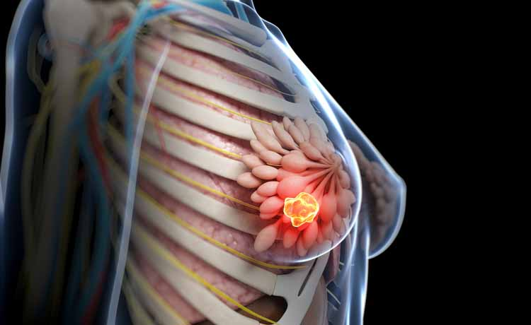 Cancro al seno, scoperti i geni che predicono rischio metastasi