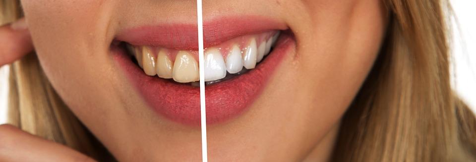 Sorriso perfetto, le 5 regole d'oro per una bocca a prova di risata