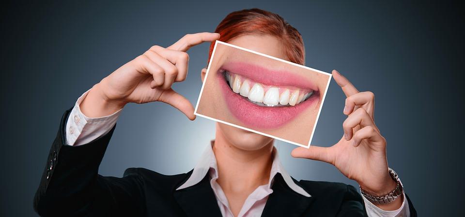Sbiancamento denti, rimedi naturali e casalinghi